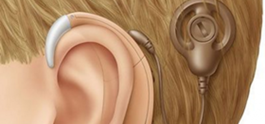 Illustration Cochlear Implant